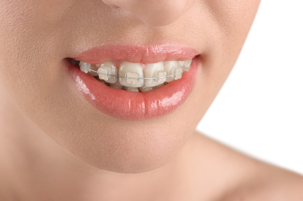 Facts You May Not Know About Orthodontics And Teeth