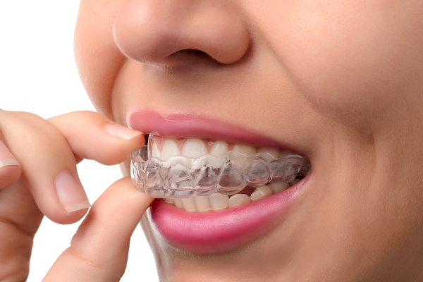 What Is The Ideal Age To Start An Orthodontic Treatment?