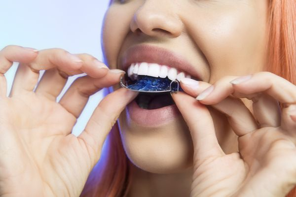 Adult Orthodontic Treatment Options For Tooth Gaps